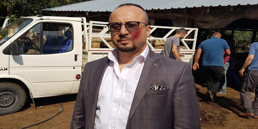 Bursa'da Haciz Esnasında Avukatın Yanağını Isıran Kişiye Hapis Cezası