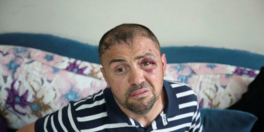 Bursa'da Bir Gazi Öldüresiye Dövüldü